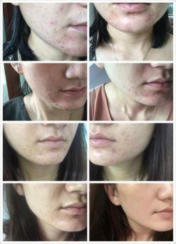 激素脸修复方法集锦激素脸多久能修复好电子宣传册
